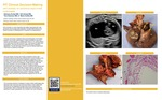 FIT Clinical Decision-Making: Uhl's anomaly: an uncommon cause of fetal cardiomegaly