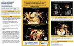 Not-so-apparent Mixing Lesions: Late Presentation Of Cardioembolic Stroke