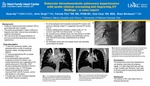 Subacute thromboembolic pulmonary hypertension with acute clinical worsening but improving CT findings - a case reporrt